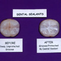 Prevent Childhood Tooth Decay with Dental Sealants
