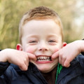 Are Dental Sealants and Fillings Safe for Kids?