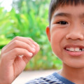 How to Care For Your Child if They Chip a Tooth
